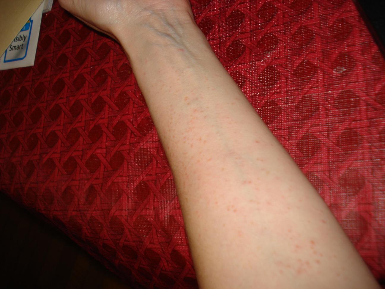 Diagnosis: Atopic Dermatitis | The Woo Woo Teacup Journal