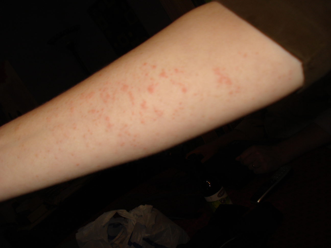 Small, itchy bumps on forearm (rash?) - Dermatology - MedHelp