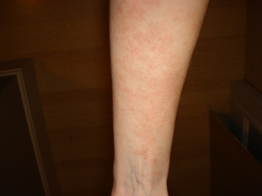 Atopic dermatitis on my arm, Oct. 9, 2011, 3 days after starting treatment.